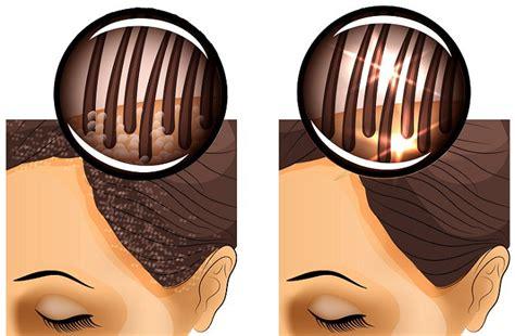 seborrea cuero cabelludo remedios naturales para combatir la caspa y seborrea