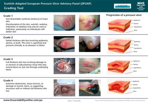 Wound Bed Description by Ulcer Classification Scottish Adapted European Pressure
