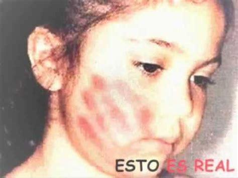 violencia de genero imagenes fuertes promocion y prevencion de la violencia intrafamiliar youtube