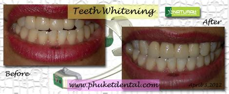 city park dental clinic gallery city park dental clinic gallery in office tooth whitening