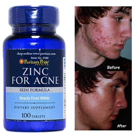 supplement zinc acne puritan s pride zinc for acne 50 mg 100 tablets skincare