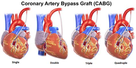 Heart Bypass Surgery – What, Why and How Heart Bypass Complications