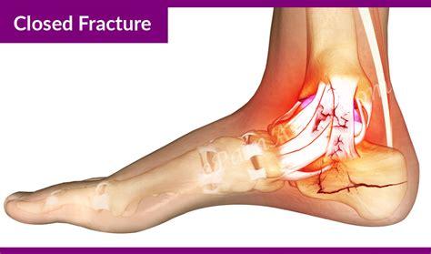 Fractures In A calcaneus fracture or broken heel treatment recovery