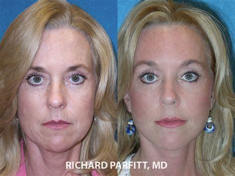 women face lift facelift before and after photos dr richard parfitt