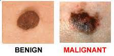 melanoma color melanoma skincancer org