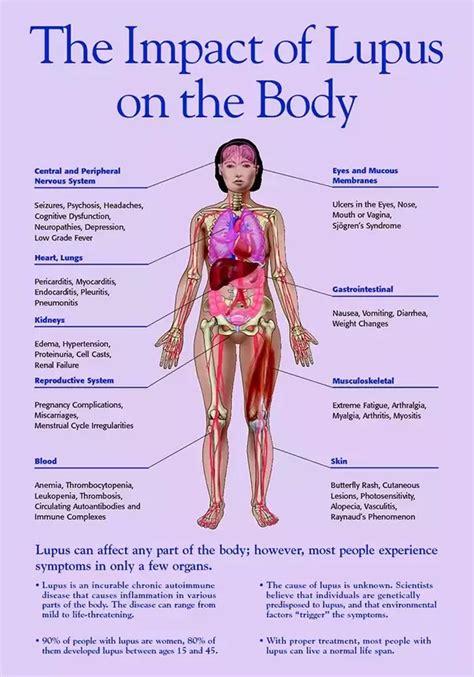 is it lupus or rheumatoid arthritis conditions