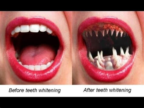 warning dangers  teeth whitening products youtube