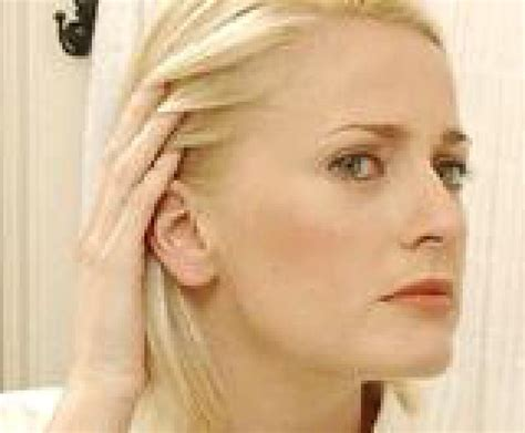 androgenic alopecia pixie cut 1000 ideas about hair loss on pinterest remedies for