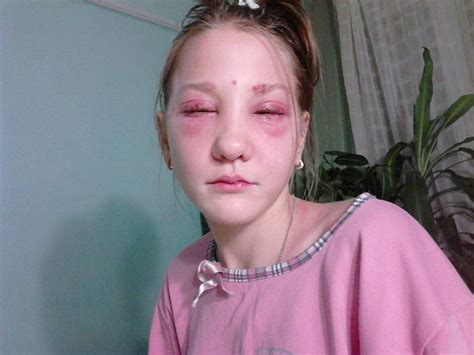 russia teen stage photo russian teen left partially blind and suffering chemical