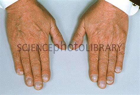 cyanotic nail beds hands showing cyanosis blueing of nail beds stock
