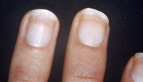 white fingernail beds what are your nails saying about your health