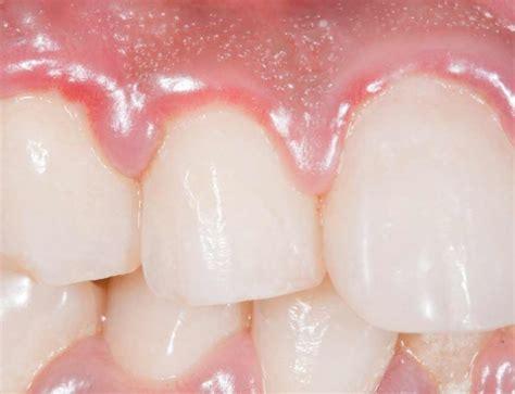 wisdom tooth pain quality dental