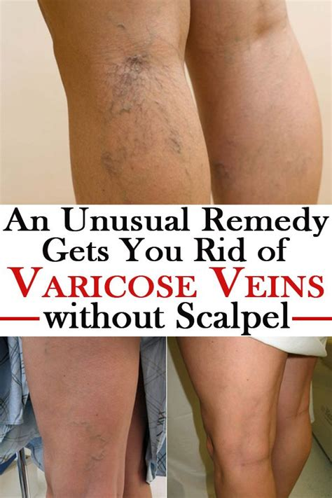 dr john layke varicose veins newhairstylesformen2014 com an unusual remedy gets you rid of varicose veins without