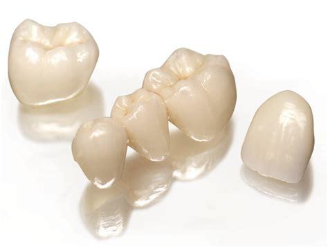 coronas de resina tipos de coronas dentales 191 cu 225 les son sus caracter 237 sticas