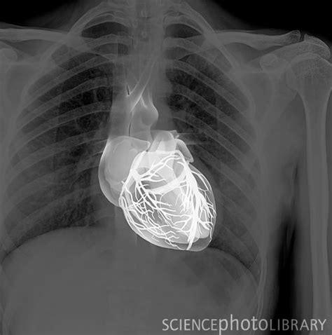 chest x ray tattoo best 25 chest x ray tattoo ideas on pinterest key