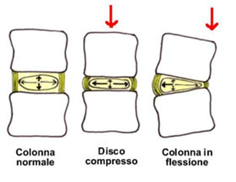 come togliere il mal di testa protrusione discale esercizi protrusione discale l5 s1