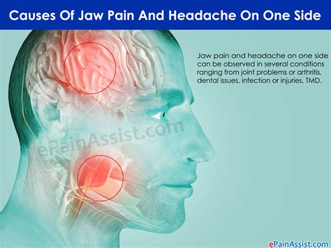 what are the causes and symptoms of jaw pain ehow image gallery jaw tooth ache