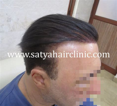 reviews on synthetic hair transplant synthetic hair transplant biofiber 12000 grafts
