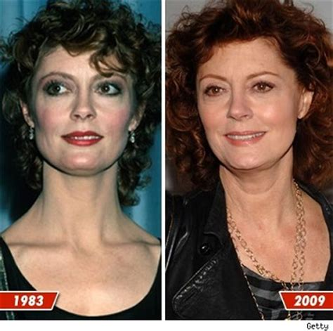 has fiona hughes had plastic surgery susan sarandon plastic surgery before and after photos