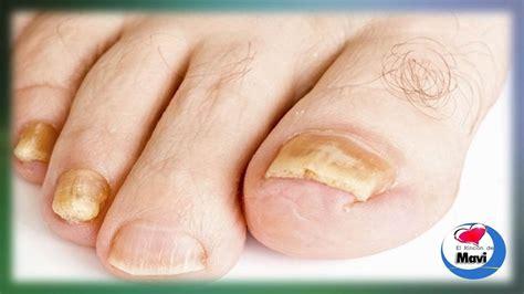 imagenes uñas con hongos hongos en las u 241 as de los pies y manos onicomicosis