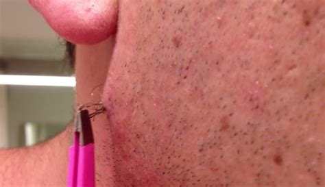 pictures of in grown hair in chin ingrown hair on chin infection use this easy to do home