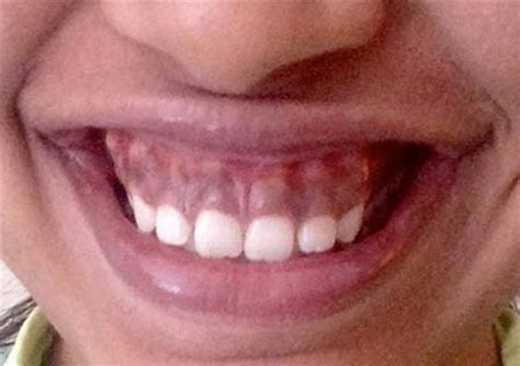 A Lovely Picture Until The Smile by Cosmetic Dentist Periodontist Beverly Dr Alex
