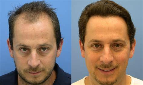 is hair transplant safe hair transplantation is a safe and easy method