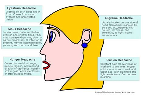Headache Location Meaning Diagram migraine headache diagram headache diagram chronic