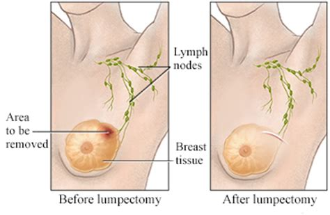 painful lump on c section scar image gallery lumpectomy