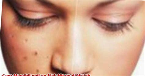 cara mudah menghilangkan bintik flek hitam di wajah secara cara menghilangkan flek hitam di wajah secara alami