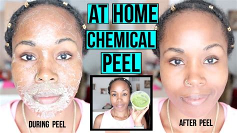 how to make a chemical peel at home erase acne