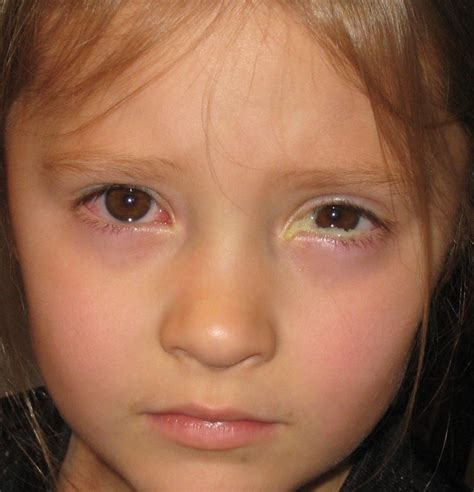 can you get pink eye from a how do you get pink eye html pkhowto