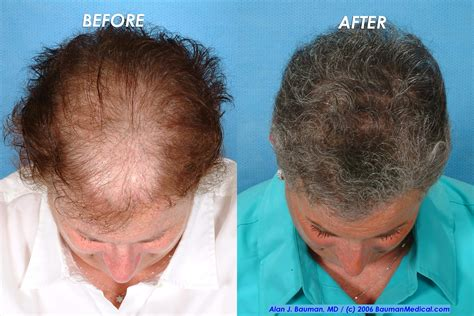 hair transplant for women dr alan bauman review plastic surgeon doctor florida
