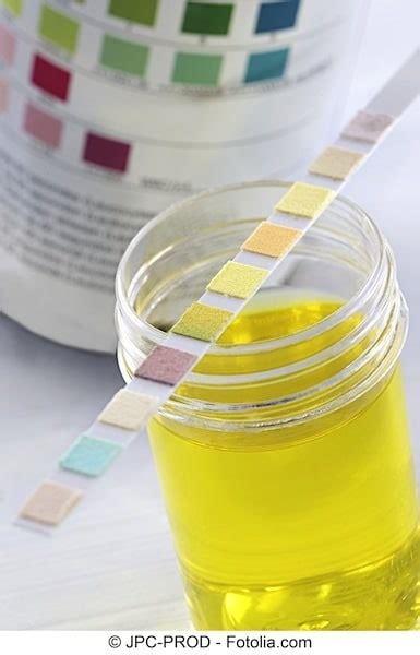 scotch test dove si compra vollst 228 ndige urinuntersuchung