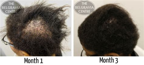 new treatment for alopecia 2014 how long does it take for hair to grow back from traction