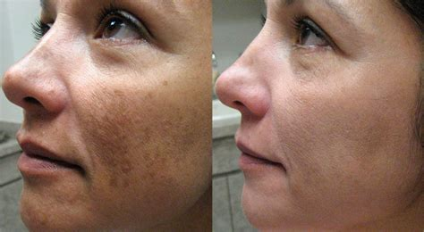 vi precision peel treats stubborn melasma and