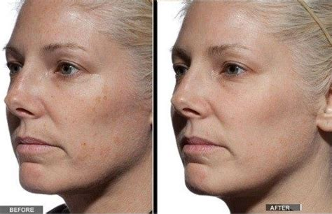 tria mesmooth 26 best images about laser hair removal at home on