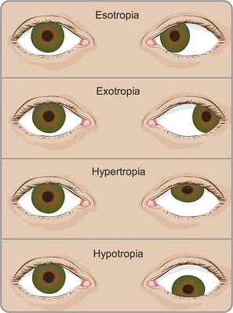 squinting one eye squints ophthalmology eye department