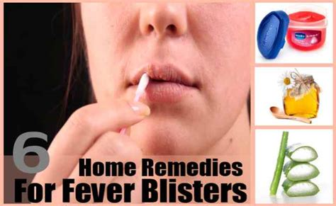 fever blister remedies home what are the treatments for