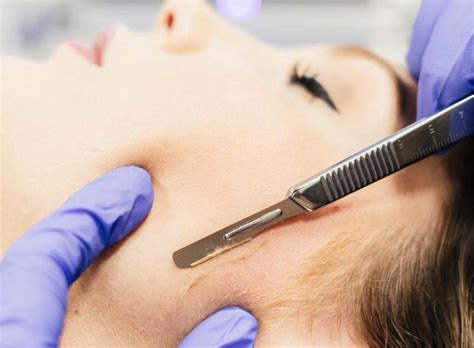 what is dermaplaning dermaplaning at home and at a salon