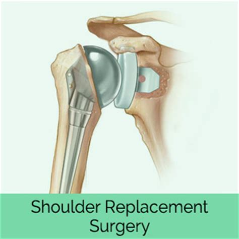 Replacement Shoulder Information | replacement shoulder information what is the cost of