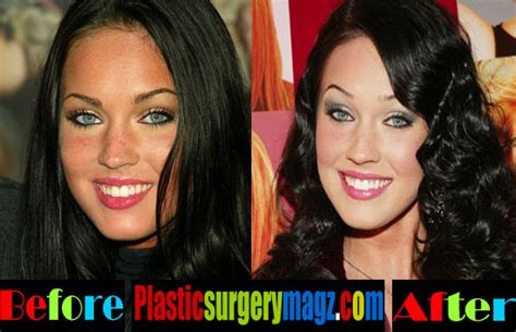 megan fox tattoo removal before and after megan fox before and after plastic surgery megan fox