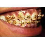 Only In Hollywood  Diamond Braces For $25000