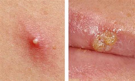 Difference Between Cold And Hair Dryer difference between herpes and pimples images