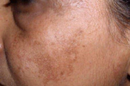 imagenes de manchas oscuras en la cara c 243 mo remover manchas en la piel de forma natural mayo 2018
