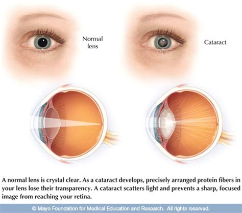cataract surgery cataract surgery current issue preview mayo clinic health letter