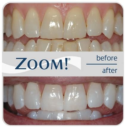 Dr Whitening Care Orioginal Pux2 new orleans cosmetic dentist new orleans dentist zoom