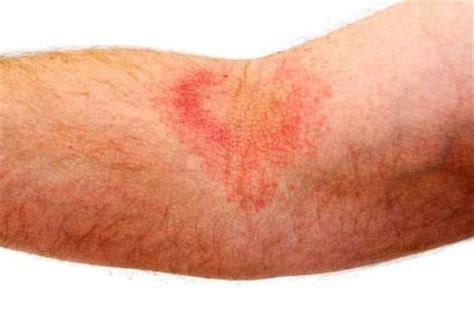 rug burn feeling on skin sweat rash information expresschemist co uk buy