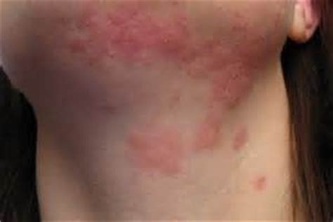 Detox Rash Remedy by Treat Skin Rash With Homeopath Treatment For Skin