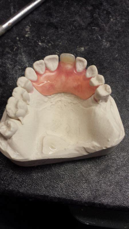 diy dentures uk 1000 images about mail order partial dentures on
